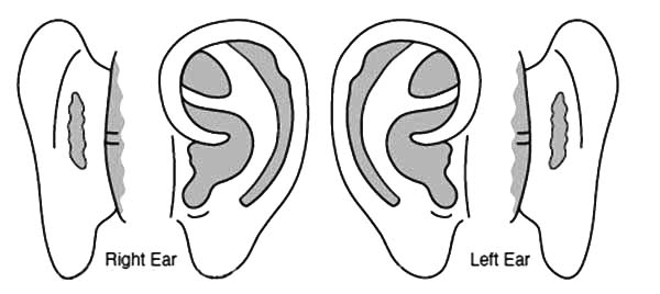 Ear, : Ear Therapy Coloring Pages